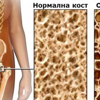 Измерване на костна плътност д-р Котова